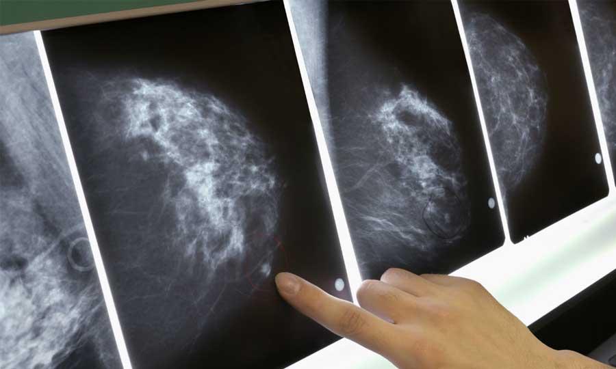 Diagnosi ultraprecoce del tumore mammario