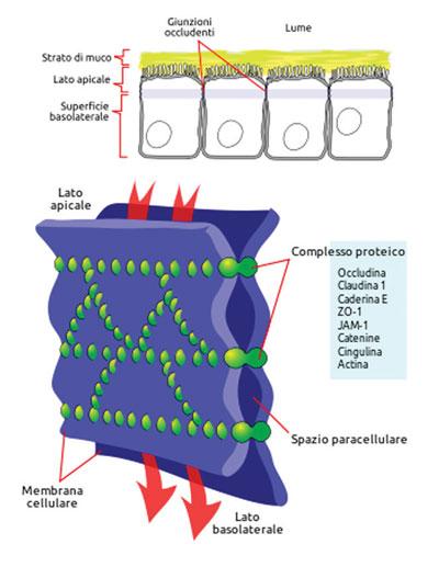 La sindrome della permeabilità intestinale